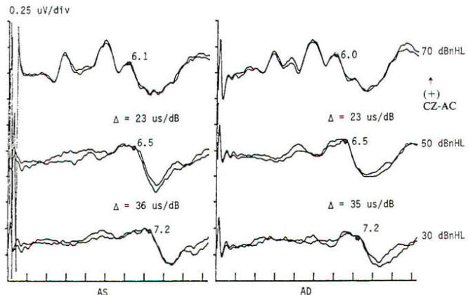 Age-Related Maturation of Wave V Latency of Auditory ...